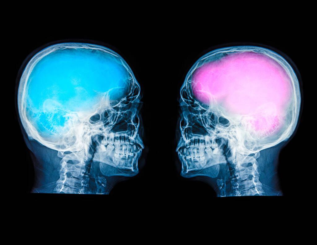 Έρευνα: Υπάρχει τελικά διαφορά ανάμεσα στον ανδρικό και τον γυναικείο εγκέφαλο;
