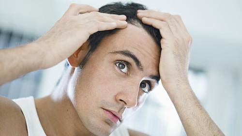Η μάχη μου εναντίον της φαλάκρας και πώς βγήκα νικητής