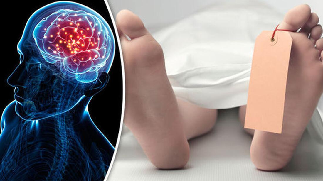 Έρευνα: Πώς ο εγκέφαλος ζει και μετά το θάνατο
