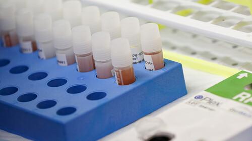 Κορονοϊός: Ενθαρρυντικά μηνύματα για το φάρμακο  - Αγώνας δρόμου από τους επιστήμονες